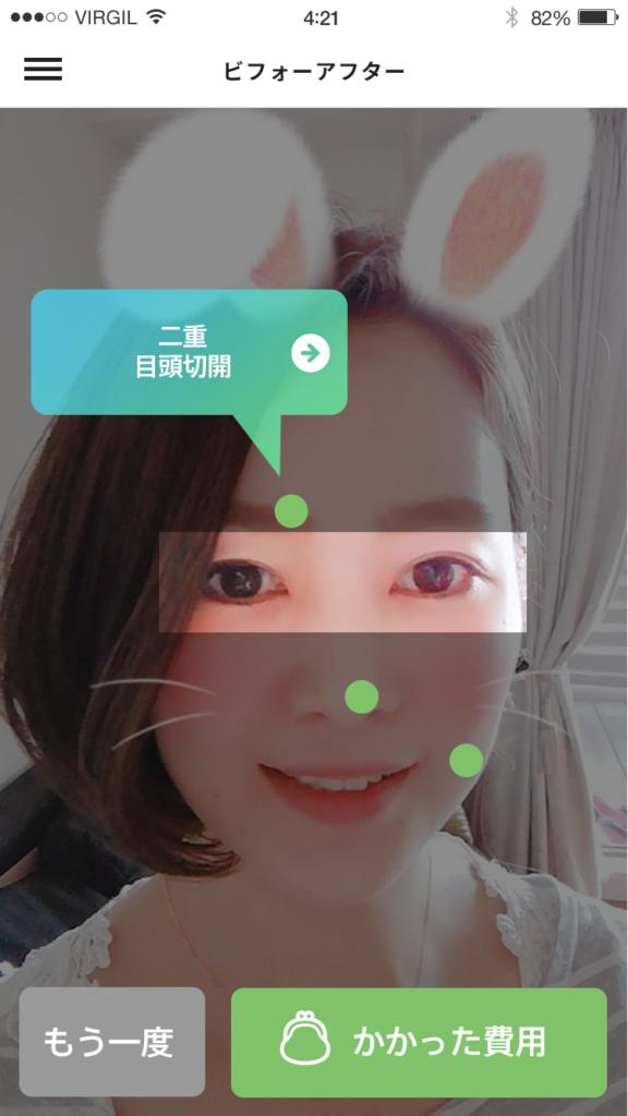 SNOW(スノー)で盛った時の顔と現実を比べて整形費用を算出してくれるアプリが欲しい。
